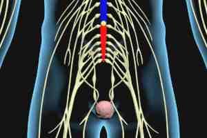 Conus Medullaris Syndrome