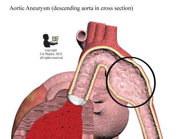 Aortic Aneurysm Cross Section