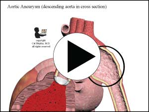 Aortic Aneurysm (cross-section)