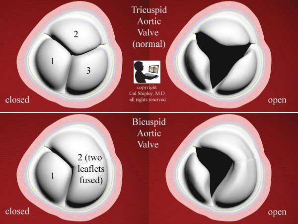 Bicuspid Tricuspid Aortic Valve