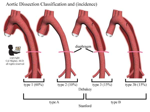 Aortic DIssection Classification
