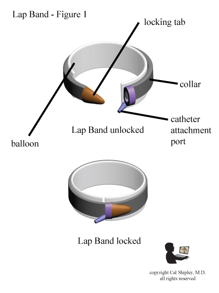 Lap Band Design