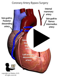 Myocardial Infarction Coronary Artery Bypass Graft (CABG)