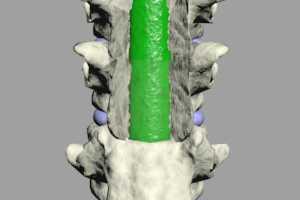 epidural infection